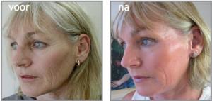 Rimpels Elze-Marie instituut voor huidverbetering Deventer