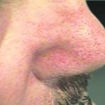 T-away behandeling couperose bloedblaasjes steelwratjes T-away couperose, steelwratjes bloedblaasjes, pigmentvlekken Elze-Mare instituut voor huidverbetering Deventer