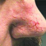 couperose verwijderen